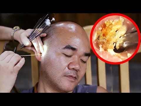 Ear cleaning with Music Relaxing For stress Relief #99